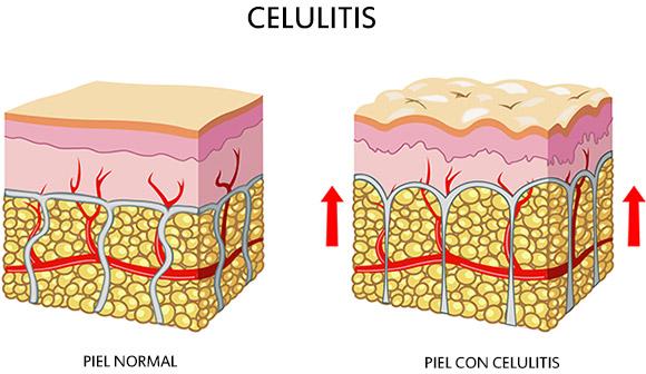Celulitis: Causas, tipos y prevención. - Caléndula